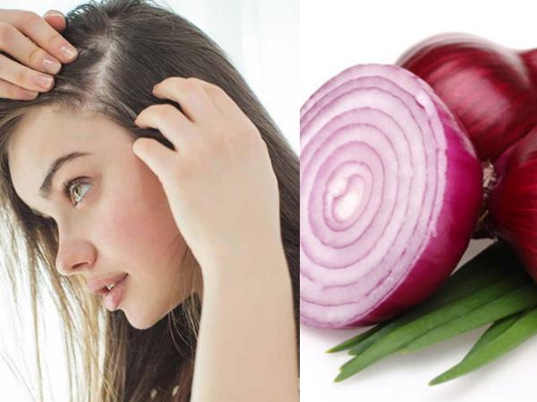 सिल्की और घने बालों के लिए प्याज का रस है असरदार, जानें लगाने का तरीका