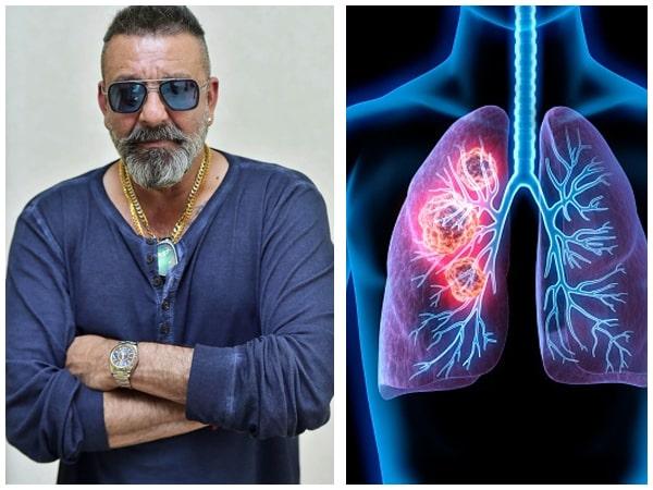 संजय दत्त को हुआ 4 स्टेज लंग कैंसर, जानें इस कैंसर के बारे में