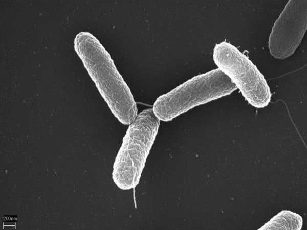 प्याज से फैल रहा सैल्मोनेला बैक्टीरिया का संक्रमण, सीडीसी ने जारी किया अलर्ट