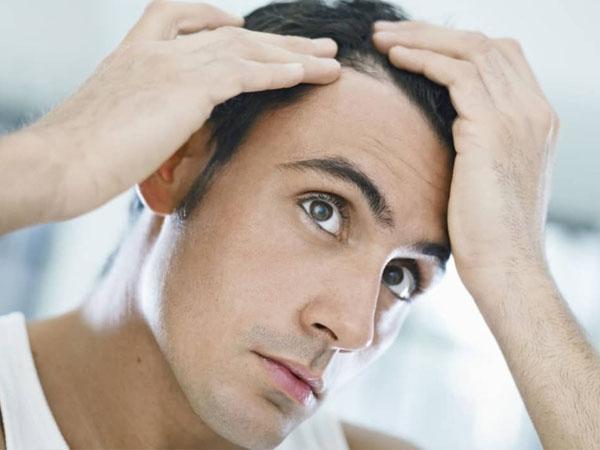 30 की उम्र में लड़के क्यों होते हैं गंजे ? जानें कारण