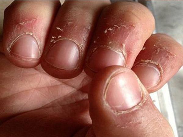 उंगलियों के आस पास की फटी खाल से निजात पाने के लिए अपनाएं ये घरेलू टिप्स