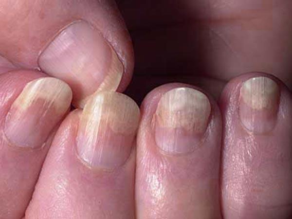 COVID nails: कोविड रिकवरी के बाद दिख रहे हैं मरीजों के नाखून में ये बदलाव, जानें इस गंभीर समस्या के बारे मे