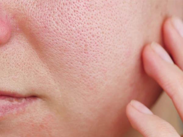चेहरे की खूबसूरती को बिगाड़ने वाले ओपन पोर्स से छूटकारा पाने के लिए इन DIY फेस पैक का करें इस्तेमाल