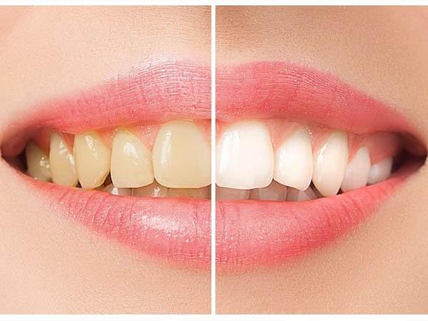 पीले दांतों से महसूस होती है शर्मिंदगी, सफेद चमकदार दांतों के लिए इस्तेमाल कर होममेड मंजन