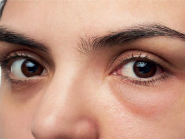 आंखों की पफीनेस को दूर करने के लिए अपनाएं ये असरदार टिप्स, जानें आंखों में सूजन के कारण