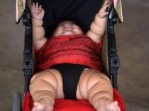 10 माह के इस बच्चें का वजन है 9 साल के बच्चे जितना है!