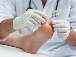Diabetic Foot Care Everything You Need To Know