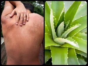 Homemade Aloe Vera Face Pack Sunburnt Skin
