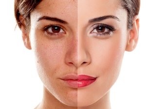 Here Is How You Can Reduce Skin Pigmentation A Week