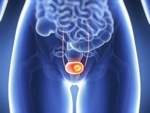 Symptoms Bladder Cancer Every Woman Should Know