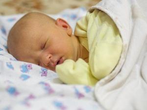 नवजात शिशु में ऐसे पहचानें पीलिया के लक्षण