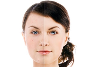 Alcohol Facials Make Skin Glow Aid