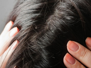 Quick N Easy Home Remedies Dandruff That Really Work