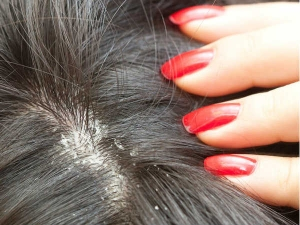 Interesting Facts About Dandruff