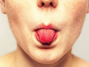 Home Remedies Soothe Burnt Tongue