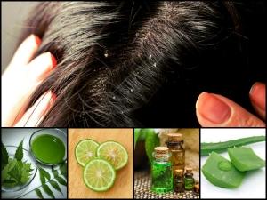 How Use Aloe Vera Gel Dandruff