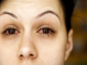 Home Remedies Watery Eyes