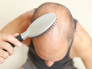 Natural Tips Prevent Male Pattern Baldness