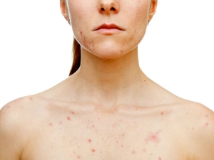Is Chest Acne Bothering You Here S How Stop It Now