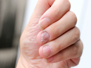 Home Remedies Treat Nail Infection