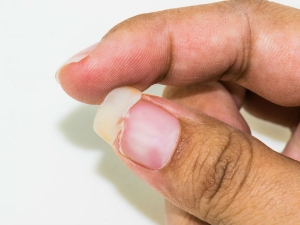 How To Prevent Nails From Breaking