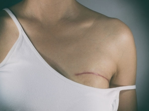 Things Every Breast Cancer Patient Should Know
