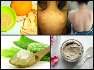 Best Home Remedies Get Rid Back Acne Now