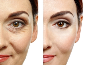 10 Natural Anti Wrinkle Treatments Prepare At Home