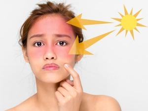 Home Remedies Treat Sun Damaged Skin