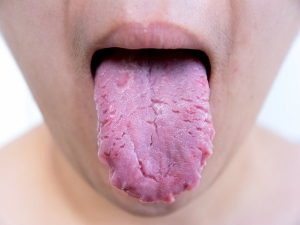 Harmful Things That Happen When You Do Not Brush Your Tongue