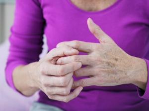 Surprising Arthritis Symptoms That Every Woman Needs Know