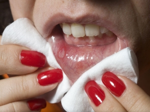 Mouth Ulcer Home Remedies