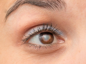 This Remedy Reduces Cataract