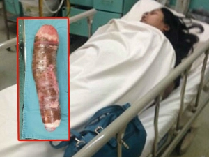 Girl Used Cassava For Pleasure And Landed In Hospital