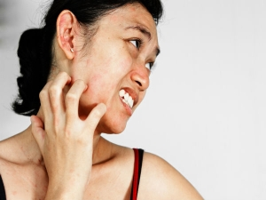 How To Get Rid Of Heat Rashes