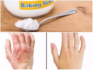 How To Soothe Eczema With Baking Soda