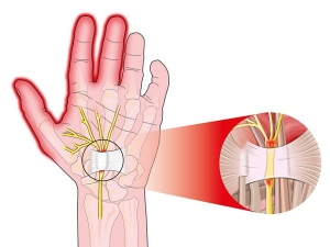 Natural Ways Relieve Hand Pain