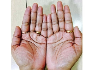 What It Means If Your Palms Are Itchy