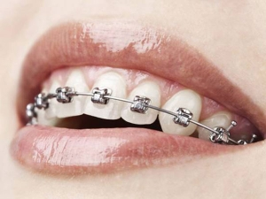 How Straighten Teeth At Home Easily Without Braces