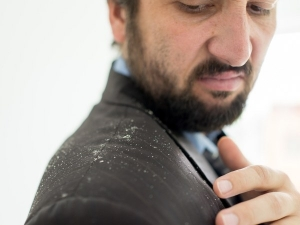 Why You Have Dandruff Your Beard