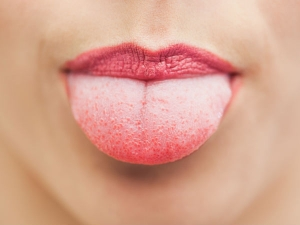 Home Remedies A White Coated Tongue