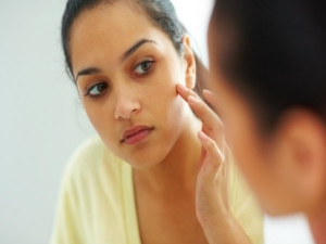 Beat Pimple Breakouts With These Home Remedies