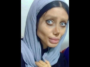 Amazing A Women Undergoes 50 Surgeries To Look Like Angelina Jolie