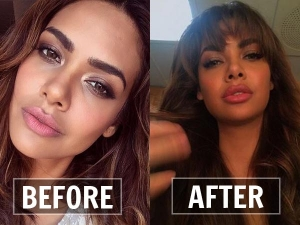 List Bollywood Actresses Before After Lip Jobs Pictures Are Shocking