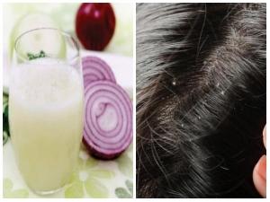 How Use Onion Juice Banish Dandruff