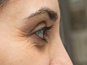Hindi Tips Under Eye Wrinkles Home Remedies