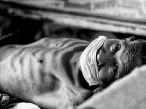 Home Remedies Tuberculosis Hindi