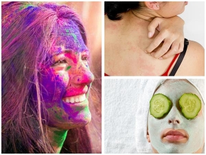 After Holi Remedy Skin Redness Itching