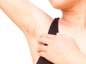 What Are The Causes Dark Underarms