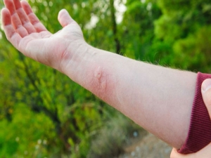 How Naturally Prevent Treat Insect Bites